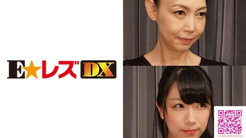 335ELDX-062 山田様 25歳